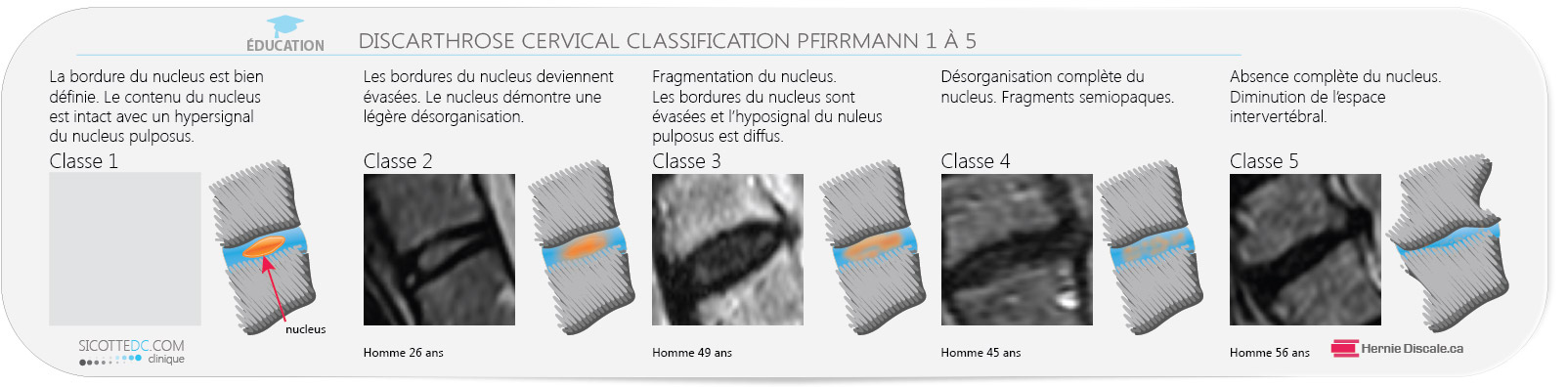 La classification Pfirrmann pour hernie discale cervicale.