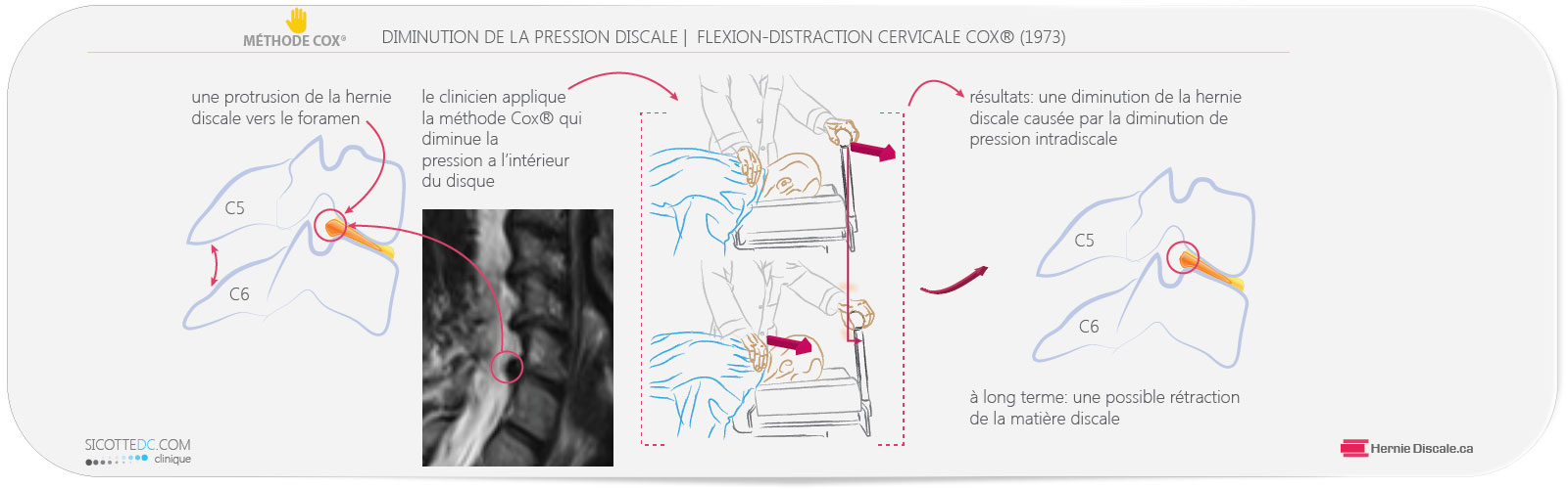 La diminution de la pression intradiscale de la hernie discale cervicale C5-C6 avec l'application de la méthode Cox®