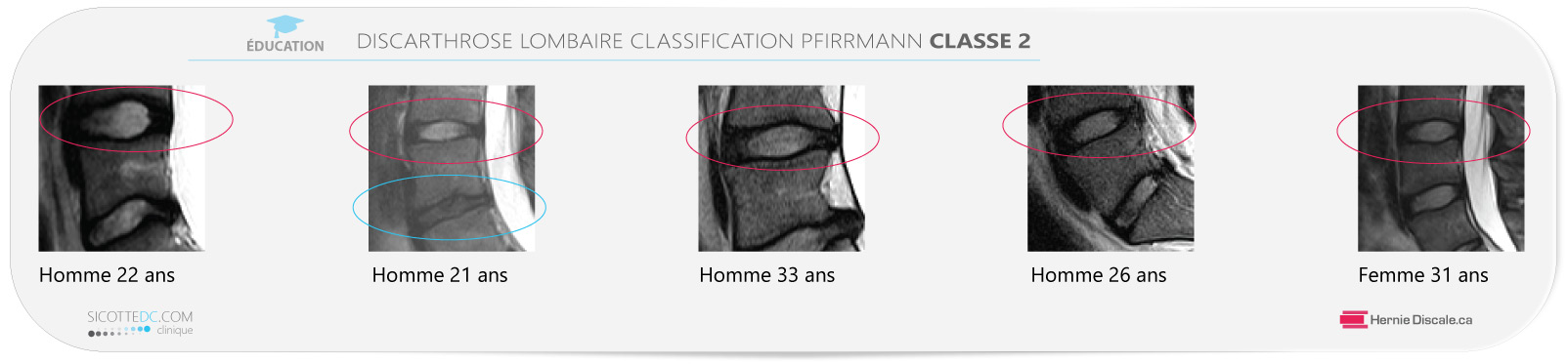 Example discarthrose lombaire classification Pfirrmann classe 2