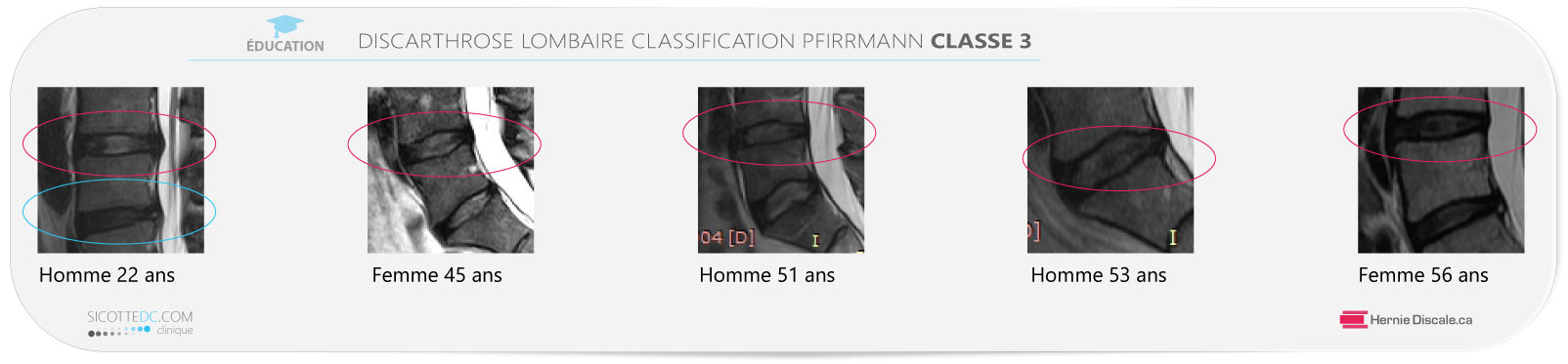 Example discarthrose lombaire classification Pfirrmann classe 3