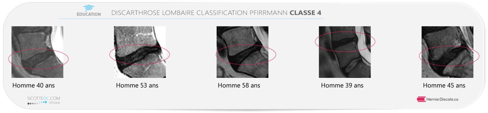 Example discarthrose lombaire classification Pfirrmann classe 4