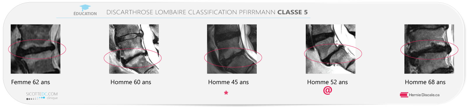 Example discarthrose lombaire classification Pfirrmann classe 5