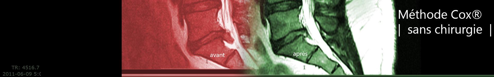 Les douleurs du côté des reins les signes des maladies