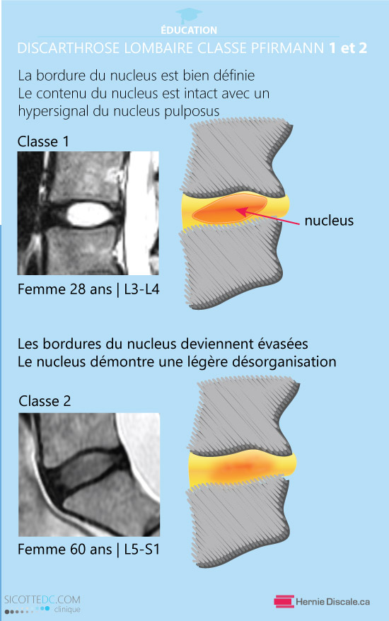 La classification de discarthrose lombaire classe 1 et 2 Pfirrmann