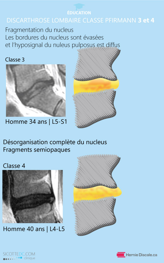 La classification de discarthrose lombaire classe 3 et 4 Pfirrmann