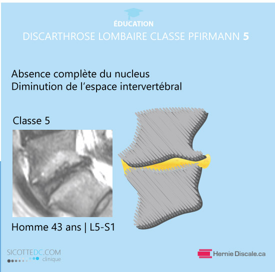 La classification de discarthrose lombaire classe 5  Pfirrmann