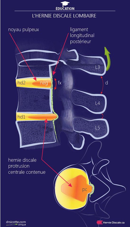 chirurgie vertebre lombaire