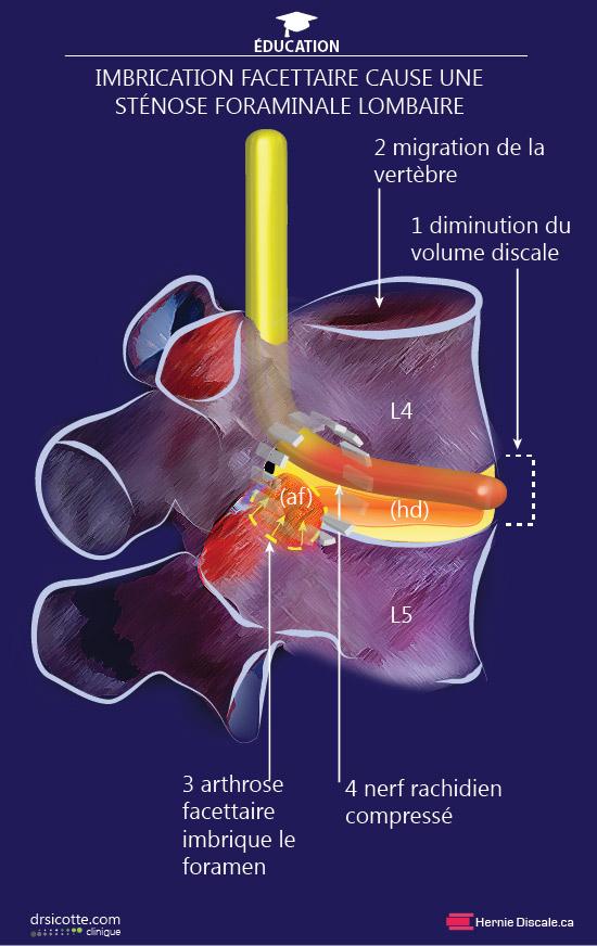 Sténose foraminale lombaire