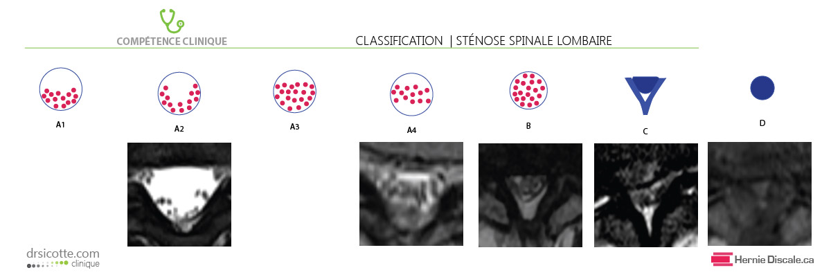 Classification de la sténose spinale basé sur la morphologie du sac dural.